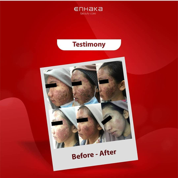 Testimony intensive acne treatment