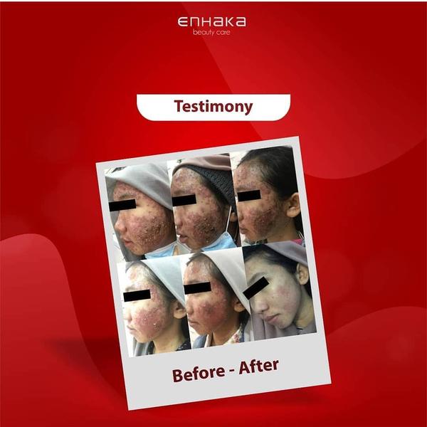 Testimony intensive acne treatment